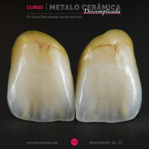 Metalo Cerâmica Descomplicada